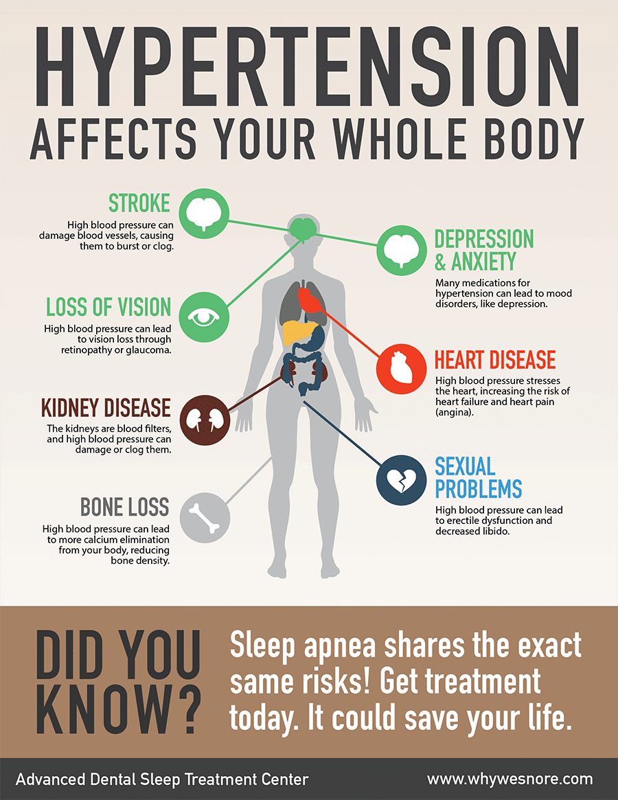 Sleep apnea and hypertension infographic